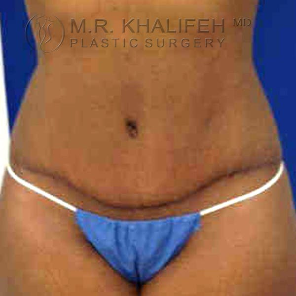 Tummy Tuck Gallery - Patient 3762152 - Image 10