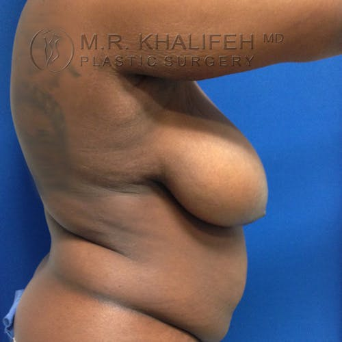 Breast Lift Gallery - Patient 3762160 - Image 3