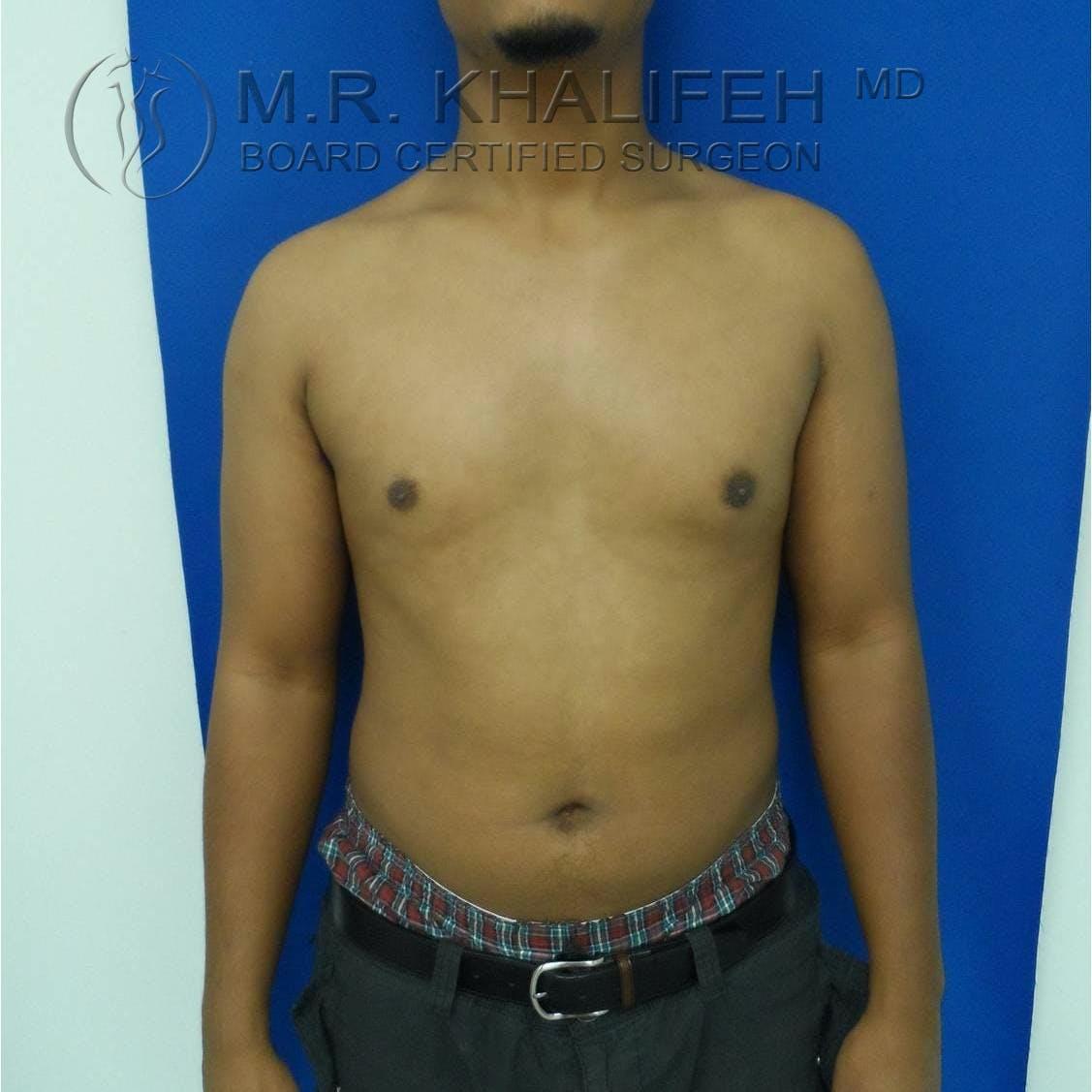 Gynecomastia Gallery - Patient 3762153 - Image 4