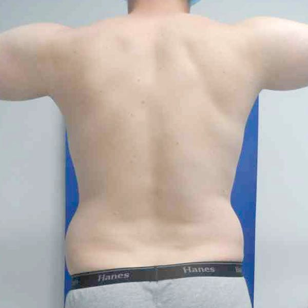 Male Liposuction Gallery - Patient 3762159 - Image 7