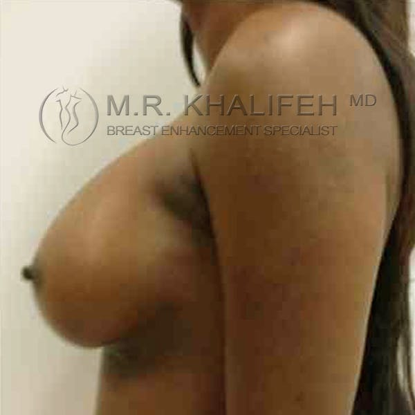 Breast Augmentation Gallery - Patient 3762154 - Image 6