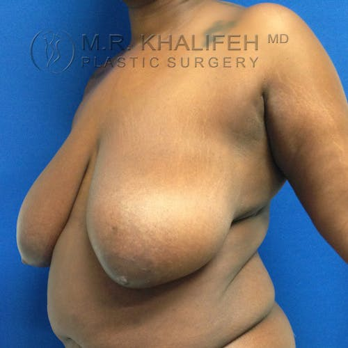 Breast Lift Gallery - Patient 3762160 - Image 5