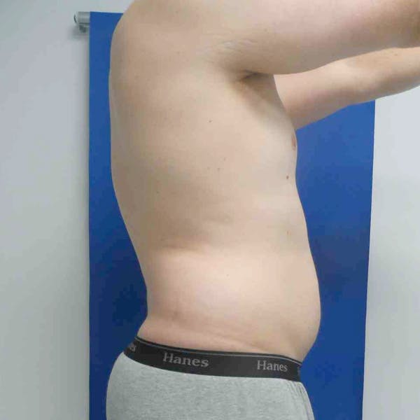 Male Liposuction Gallery - Patient 3762159 - Image 9