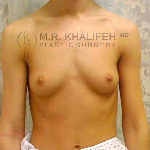 Breast Augmentation Gallery - Patient 3762165 - Image 1