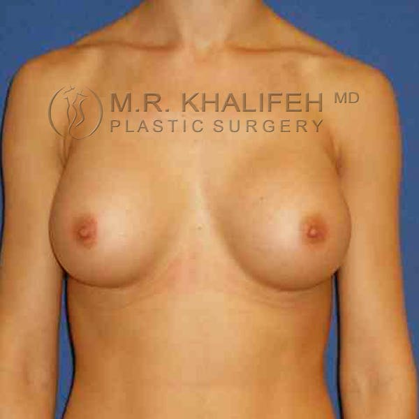 Breast Augmentation Gallery - Patient 3762165 - Image 2