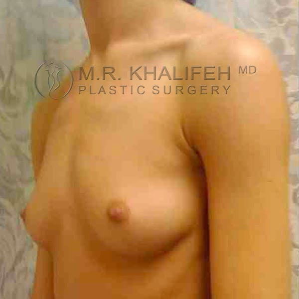 Breast Augmentation Gallery - Patient 3762165 - Image 3