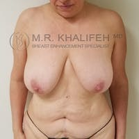 Breast Lift Gallery - Patient 3762164 - Image 1
