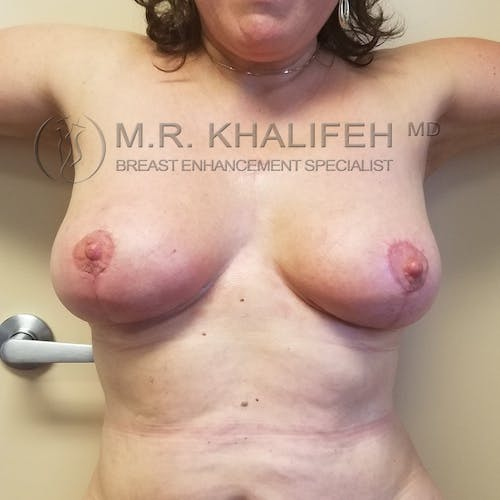 Breast Lift Gallery - Patient 3762164 - Image 2