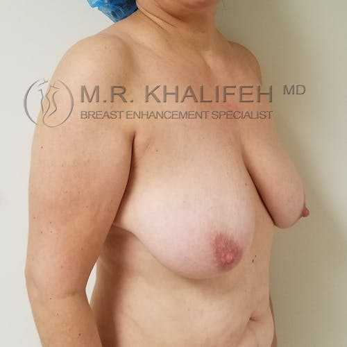 Breast Lift Gallery - Patient 3762164 - Image 3