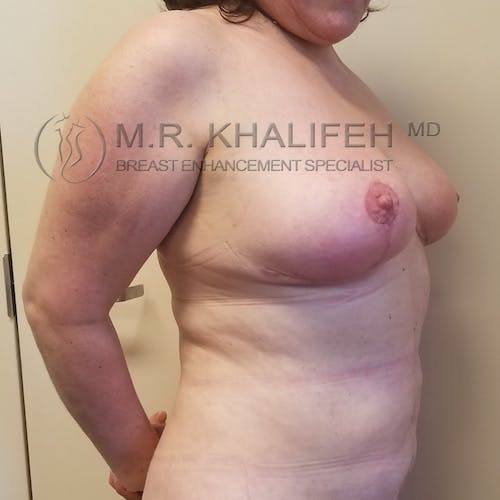 Breast Lift Gallery - Patient 3762164 - Image 4