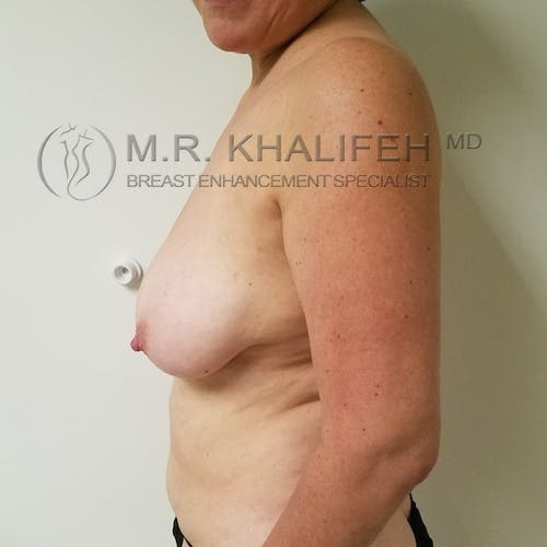 Breast Lift Gallery - Patient 3762164 - Image 5