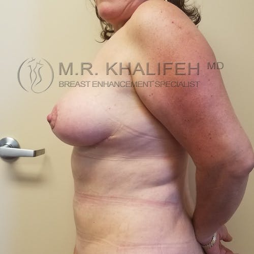 Breast Lift Gallery - Patient 3762164 - Image 6