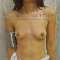 Breast Augmentation Gallery - Patient 3762171 - Image 1