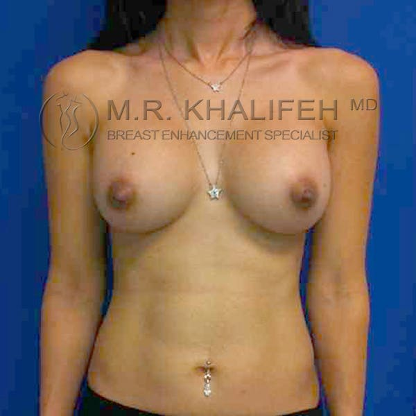 Breast Augmentation Gallery - Patient 3762171 - Image 2