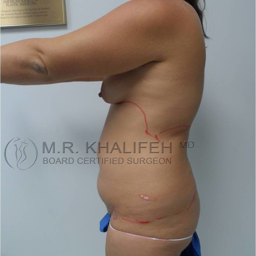 Tummy Tuck Gallery - Patient 3762172 - Image 7