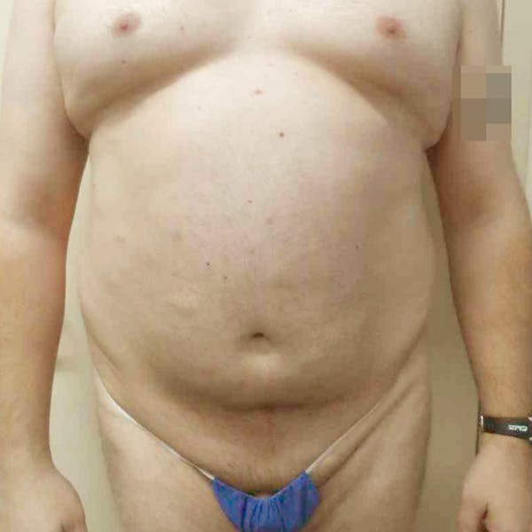 Male Liposuction Gallery - Patient 3762181 - Image 1