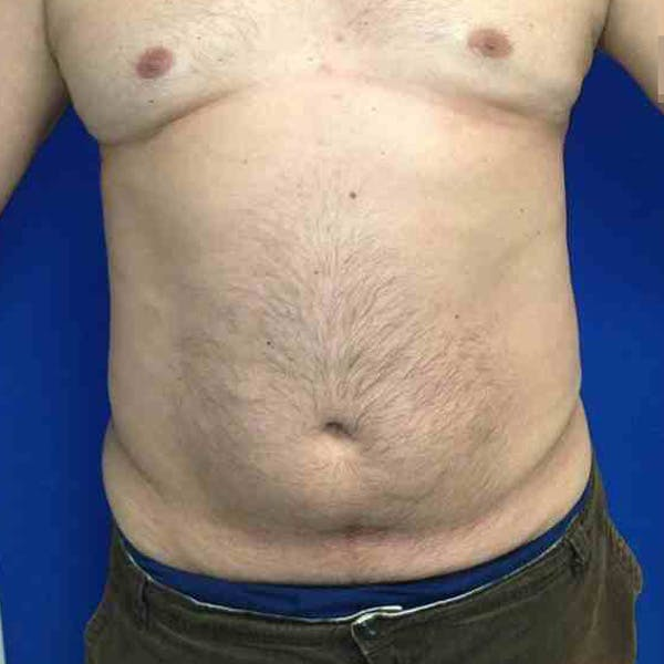 Male Liposuction Gallery - Patient 3762181 - Image 2