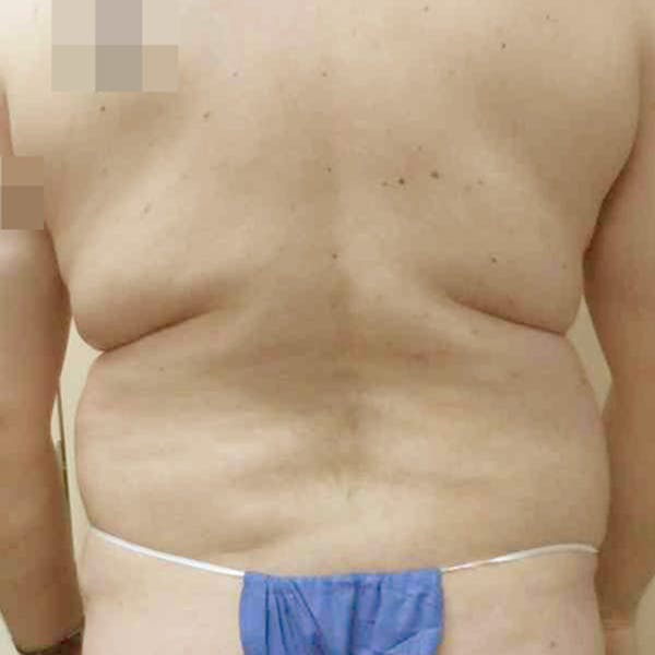 Male Liposuction Gallery - Patient 3762181 - Image 3