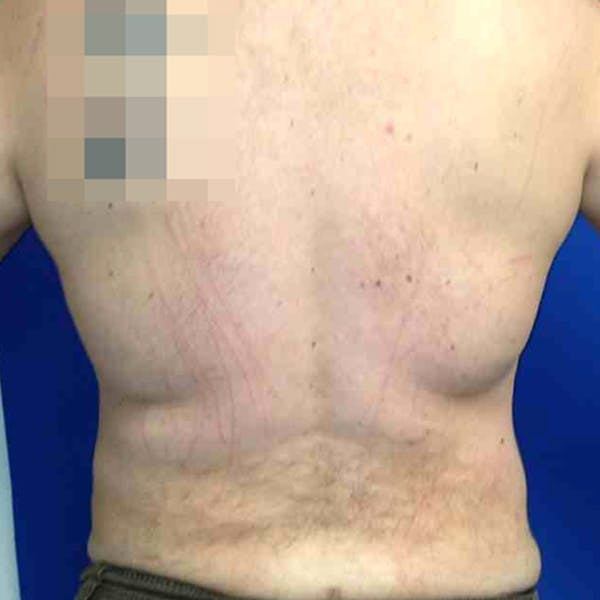 Male Liposuction Gallery - Patient 3762181 - Image 4