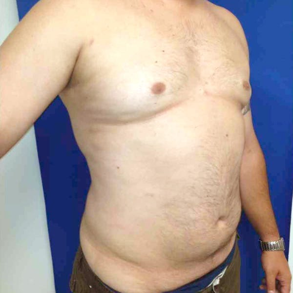 Male Liposuction Gallery - Patient 3762181 - Image 6