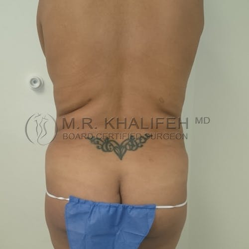 Breast Lift Gallery - Patient 3762185 - Image 7