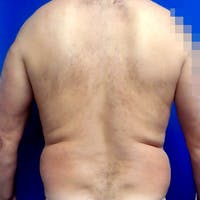 Male Liposuction Gallery - Patient 3762203 - Image 1