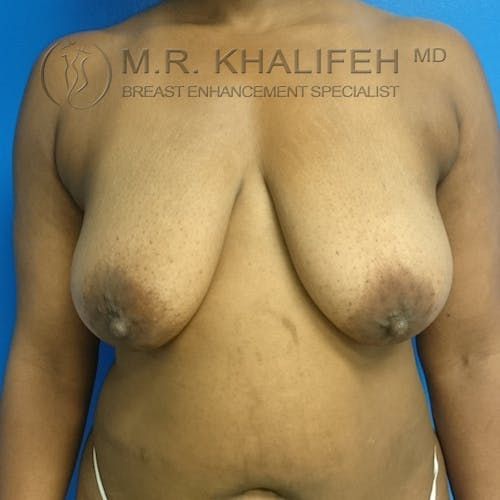Breast Lift Gallery - Patient 3762196 - Image 1
