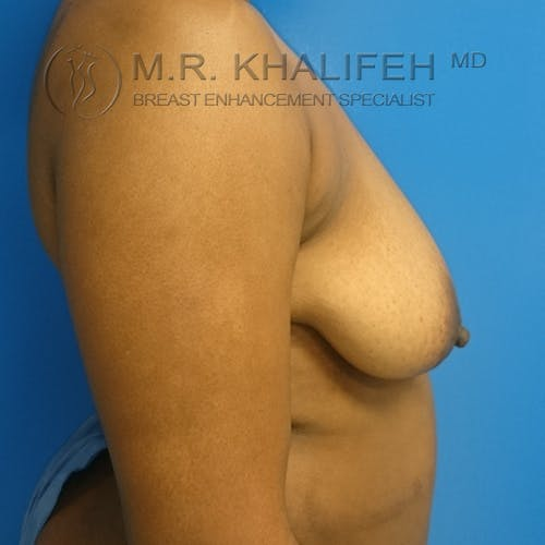 Breast Lift Gallery - Patient 3762196 - Image 5