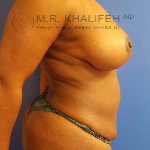 Breast Lift Gallery - Patient 3762196 - Image 6