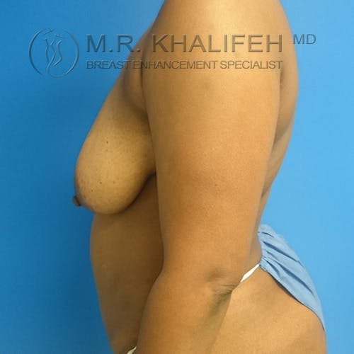 Breast Lift Gallery - Patient 3762196 - Image 7