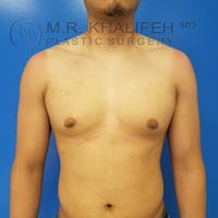 Gynecomastia Gallery - Patient 3762209 - Image 1