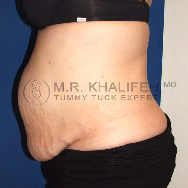 Tummy Tuck Gallery - Patient 3762202 - Image 5