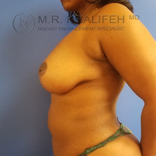 Breast Lift Gallery - Patient 3762196 - Image 8