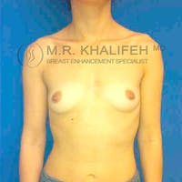 Breast Augmentation Gallery - Patient 3762214 - Image 1