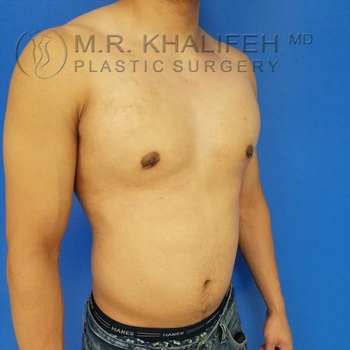 Gynecomastia Gallery - Patient 3762209 - Image 4