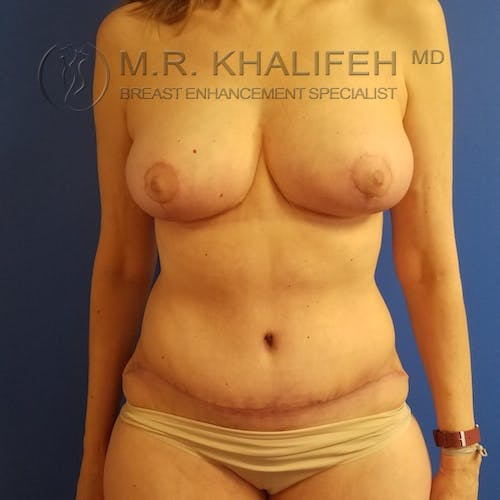 Breast Lift Gallery - Patient 3762220 - Image 2