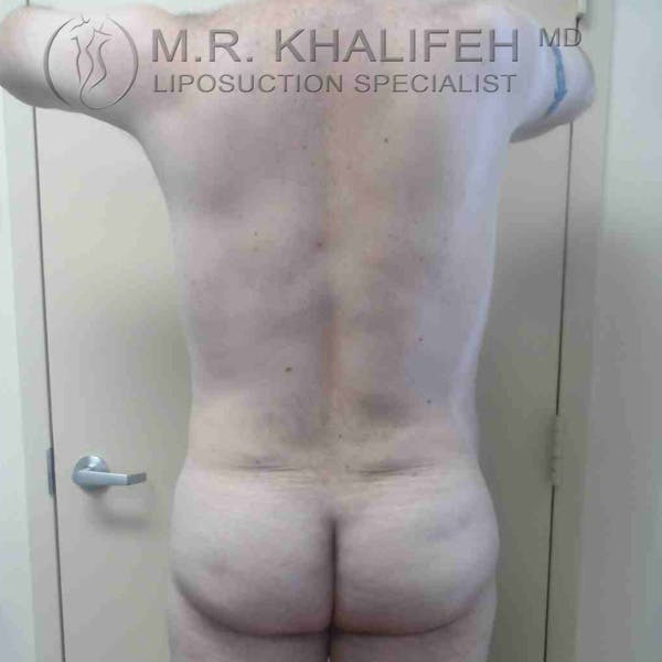 Male Liposuction Gallery - Patient 3762218 - Image 2