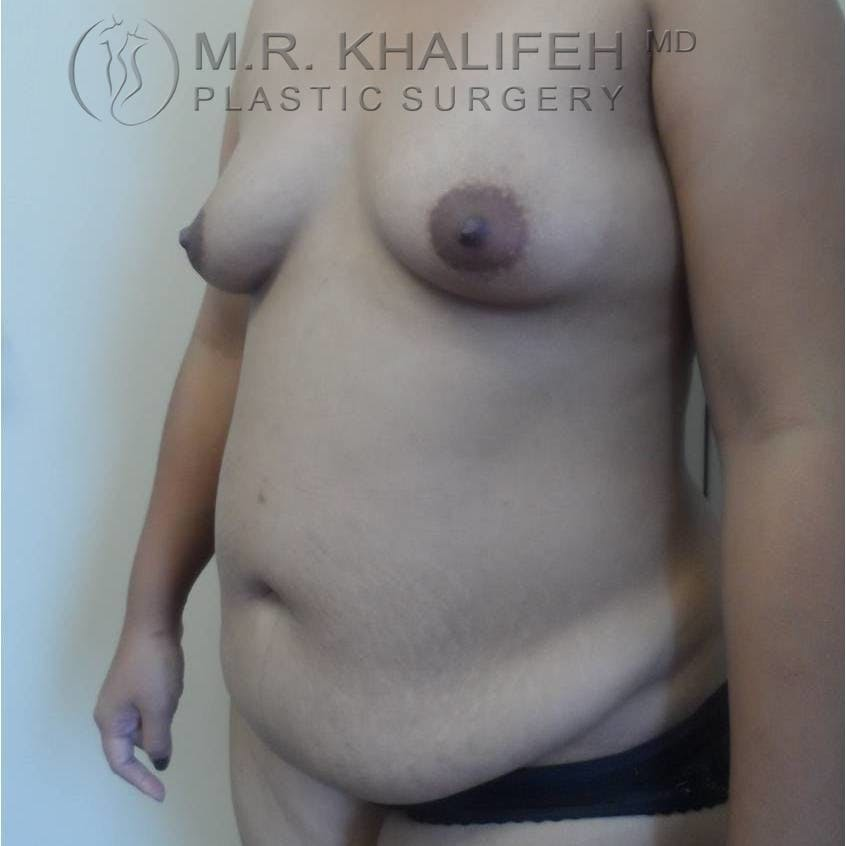 Breast Augmentation Gallery - Patient 3762230 - Image 3