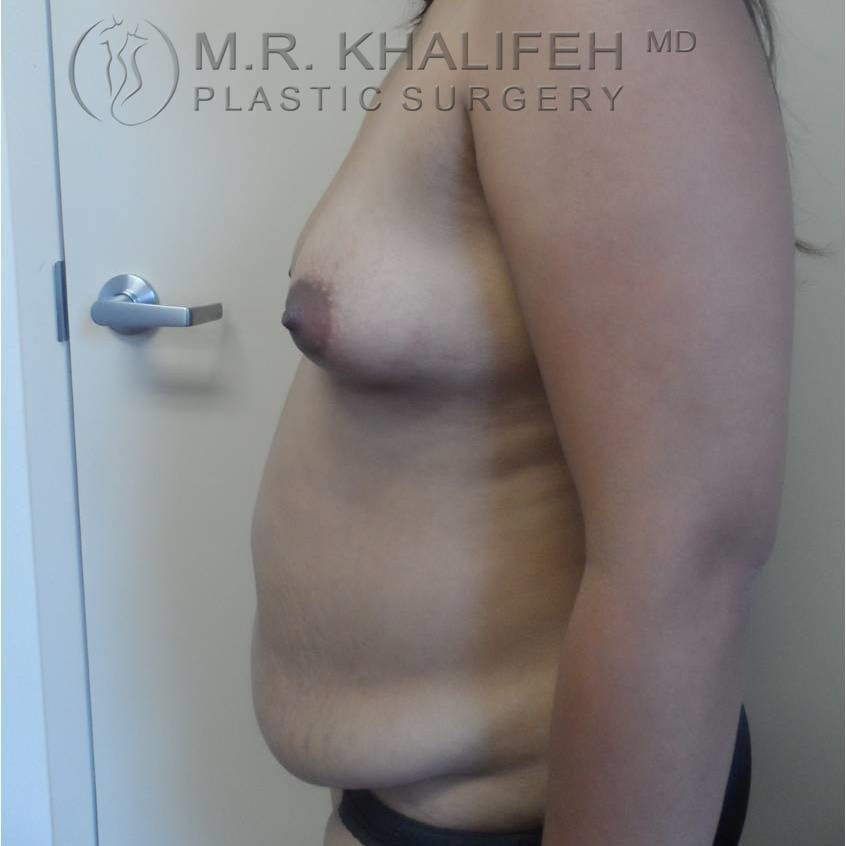 Breast Augmentation Gallery - Patient 3762230 - Image 5