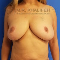 Breast Lift Gallery - Patient 3762236 - Image 1