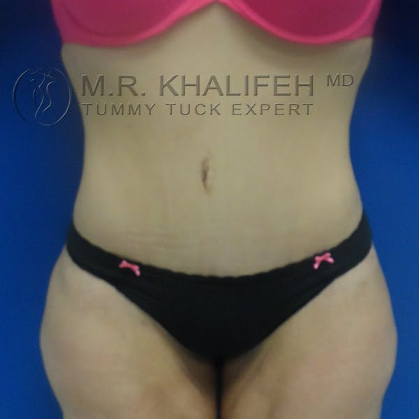 Tummy Tuck Gallery - Patient 3762239 - Image 2