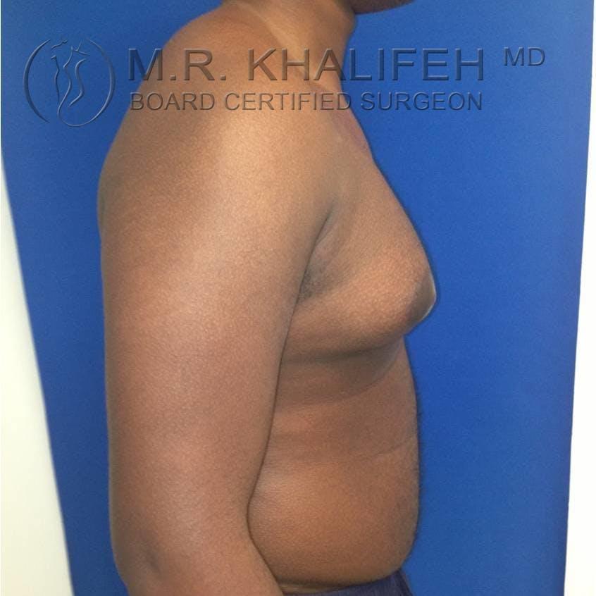Gynecomastia Gallery - Patient 3762240 - Image 1