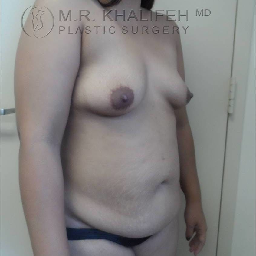 Breast Augmentation Gallery - Patient 3762230 - Image 7