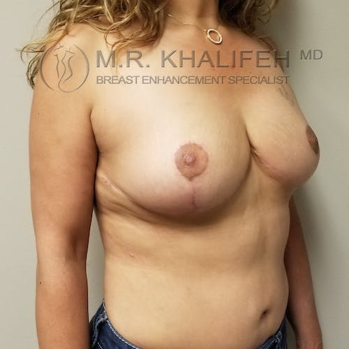 Breast Lift Gallery - Patient 3762236 - Image 4
