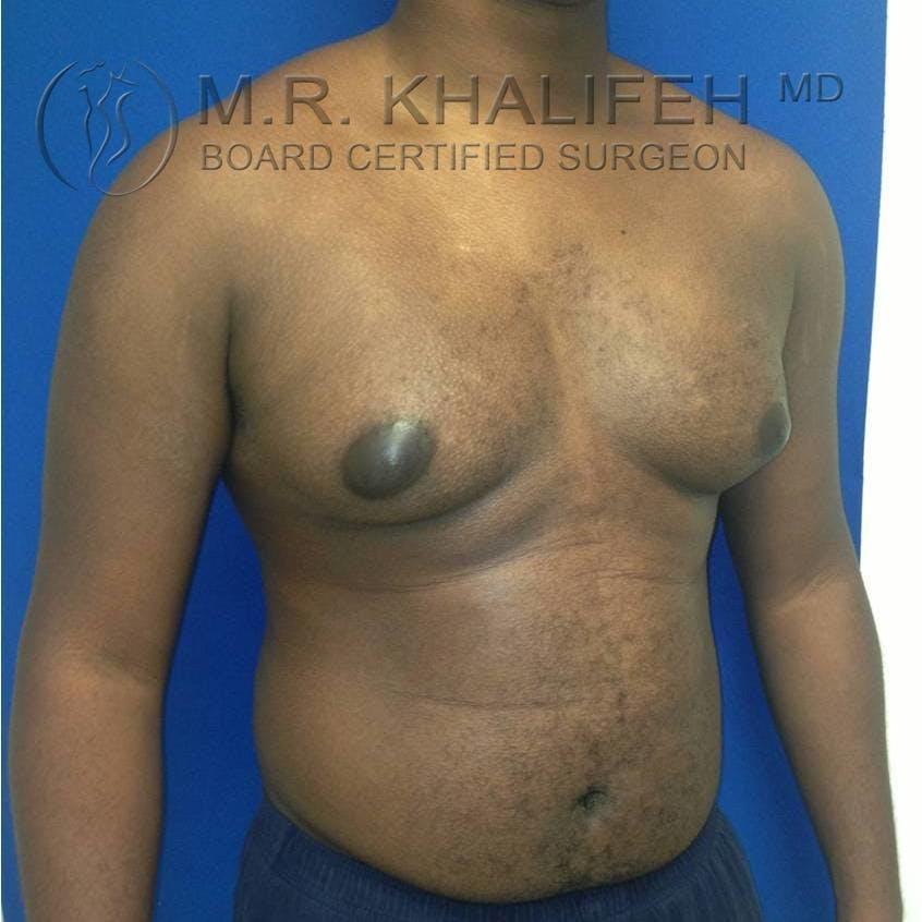 Gynecomastia Gallery - Patient 3762240 - Image 3