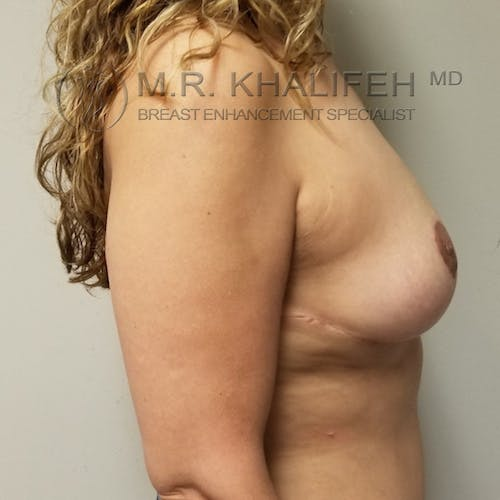 Breast Lift Gallery - Patient 3762236 - Image 6