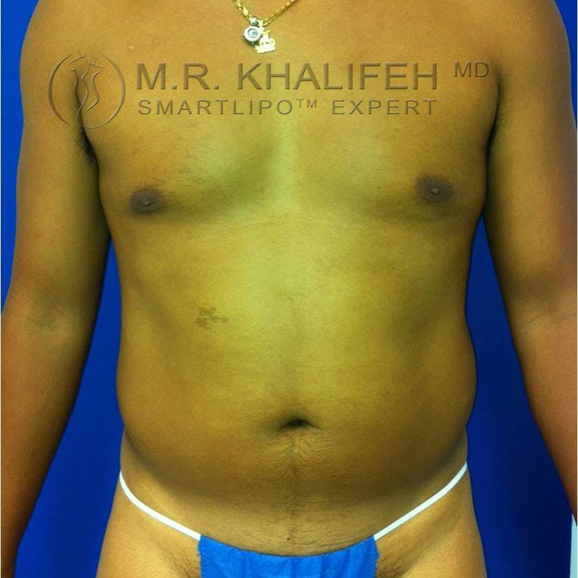 Male Liposuction Gallery - Patient 3762245 - Image 1