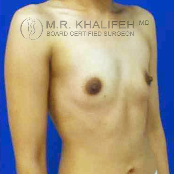 Breast Augmentation Gallery - Patient 3762242 - Image 1