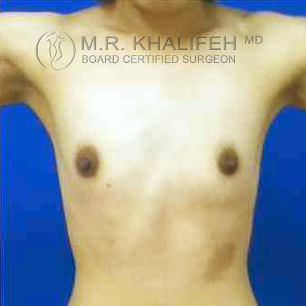 Breast Augmentation Gallery - Patient 3762242 - Image 3