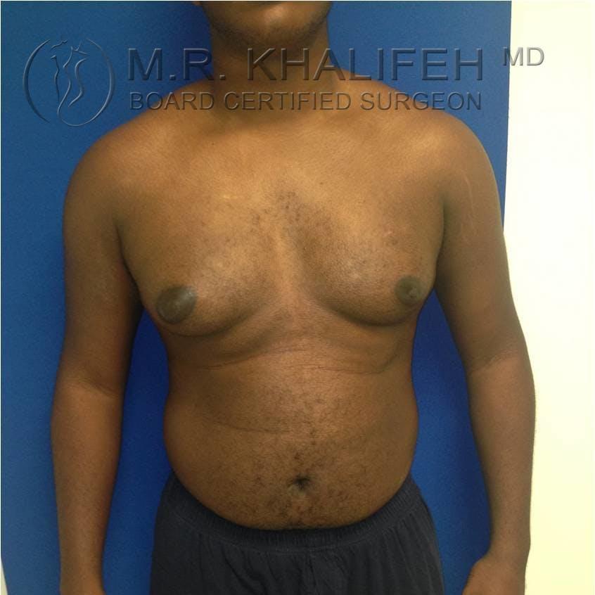 Gynecomastia Gallery - Patient 3762240 - Image 7